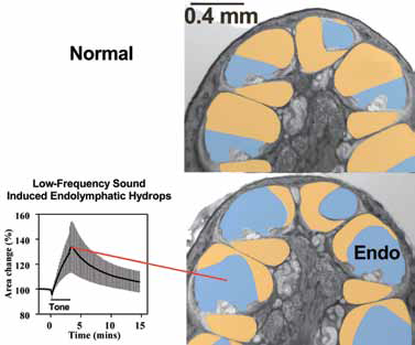 Figure 3: Brief exposures to low-frequency tones cause endolymphatic hydrops in animals (Salt, 2004) and tinnitus and acoustic emission changes consistent with endolymphatic hydrops in humans (Drexel et al, 2013). The anatomic pictures at the right show the difference between the normal (upper) and hydropic (lower) cochleae The endolymphatic space (shown blue) is enlarged in the hydropic cochlea, generated surgically in this case.